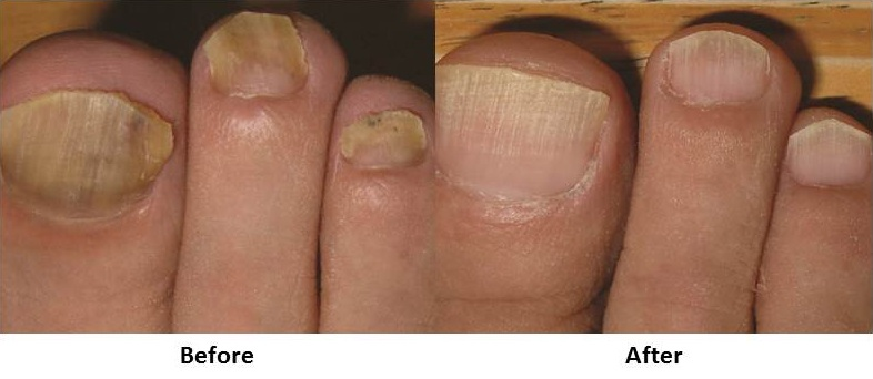 Laser Toenail Fungus Trreatment before and after